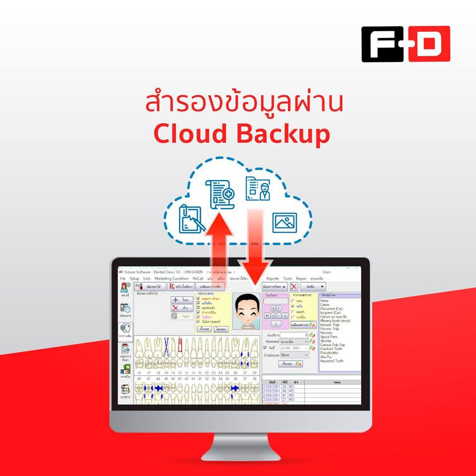 ใช้ FD Cloud Backup แล้วดียังไง